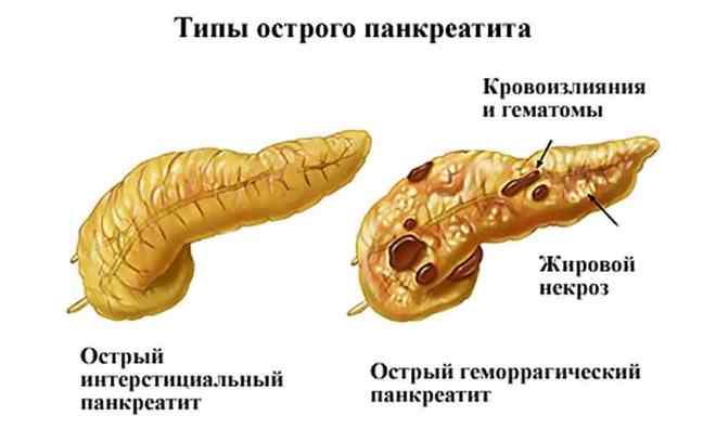 Типы панкреатита